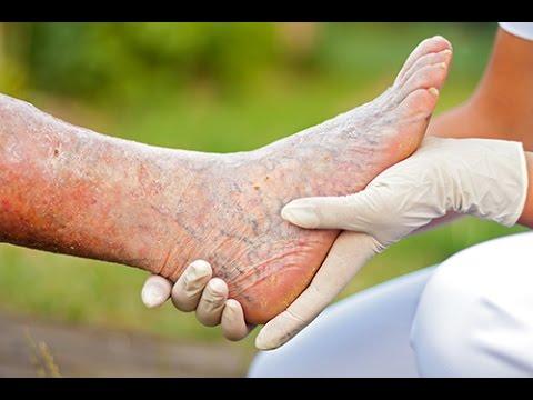 Le scanning des veines profondes des pieds