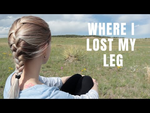 COME WITH ME: WHERE I LOST MY LEG & BECAME AN AMPUTEE (15 years ago)   [cc]