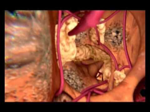 Цирроз печени при гепатитах