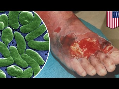 Video Flesh-eating bacteria: what you need to know to about vibriosis to avoid infection - TomoNews