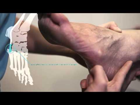 Was wenn auf dem Bein zu machen es wächst auf dem Finger der Kern