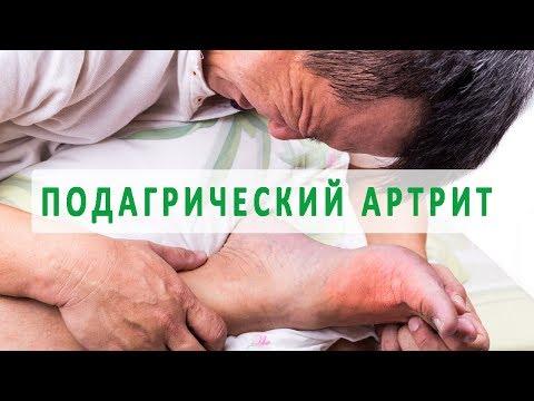 За и против замены коленного сустава