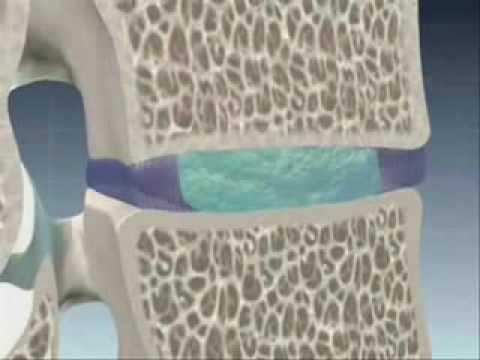 Stazioni in Russia trattare il mal di schiena