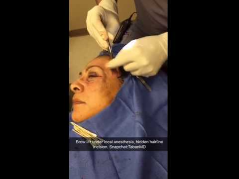 Pretrichial Brow Lift Using a Hidden Hairline