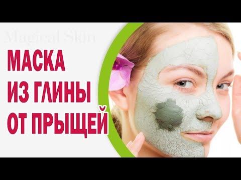 Маска для лица из глины от прыщей и воспаленной кожи