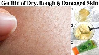 How To Get Rid Of Dry, Rough And Damaged Skin Easily At Home   Home Remedies