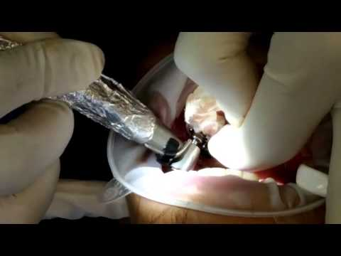 Navigation in Implantology - Flapless Surgery