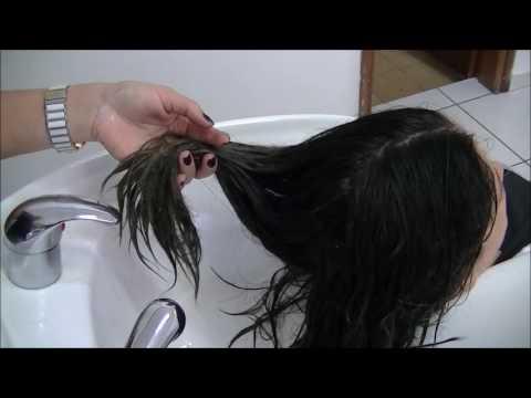 Przeszczepu włosów skutki uboczne