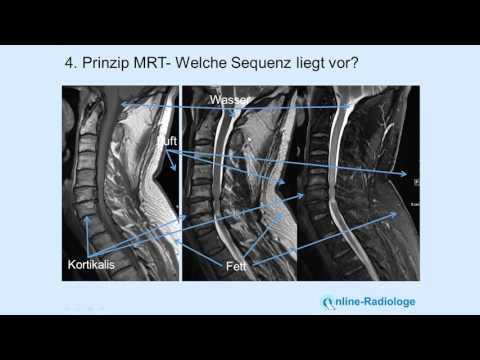 Welche Übungen mit zervikalem Osteochondrose Video zu tun