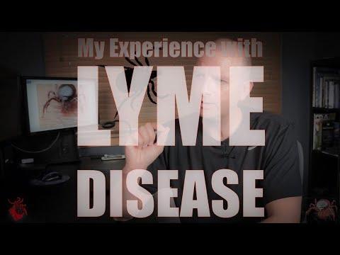 Fájdalomcsillapító gyógyszeres kezelés az oszteokondrozisra