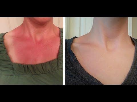 Video Instant Sunburn Relief & Quick Healing - 2 Simple Ingredients