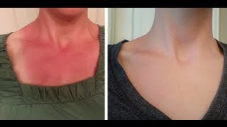 Instant Sunburn Relief & Quick Healing - 2 Simple Ingredients