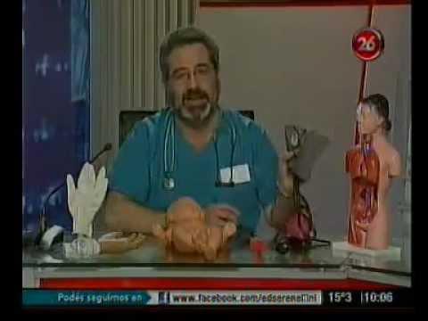 SDA-2 para la hipertensión instrucción uso humano