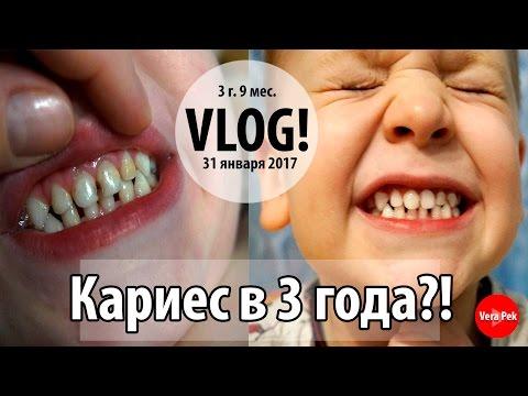 ЛЕЧЕНИЕ КАРИЕСА у детей / ВИДЕО ИЗ КАБИНЕТА врача / VERA PEK