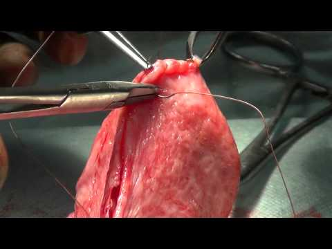 Operacja wodniaka jądra