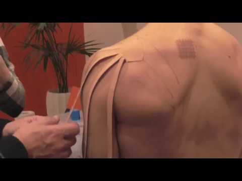 Che per il trattamento di danno articolare