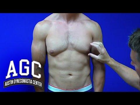 Procedure Video: Gynecomastia Treatment Explained