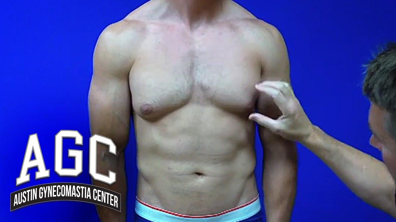 Gynecomastia Video: Gynecomastia Treatment Explained