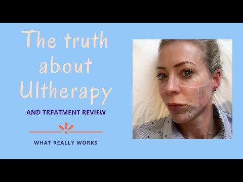 The truth about Ultherapy | Alice Hart-Davis