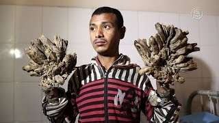 «Человек-дерево» из Бангладеш перенёс операцию (новости)