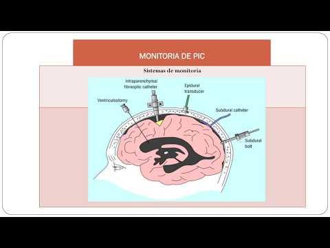 Medicamentos para la hipertensión en la gota
