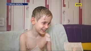 В Україні люди з інвалідністю з дитинства виживають на на 1500 гривень на місяць