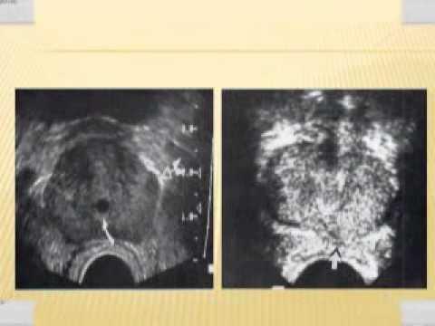 Malattie della prostata legate alletà negli uomini
