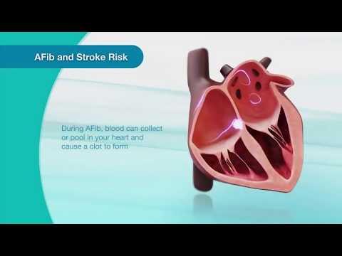 Hipertenzije visoke gornji