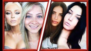 12 звезд российского Instagram До и После пластики/Решетова, Шишкова, Самойлова и др.