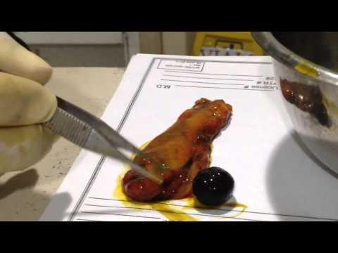 Parasito naninirahan sa nasopharynx