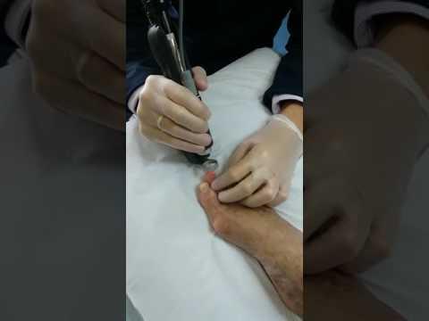 Fungo de pregos depois de tratamento de manicura