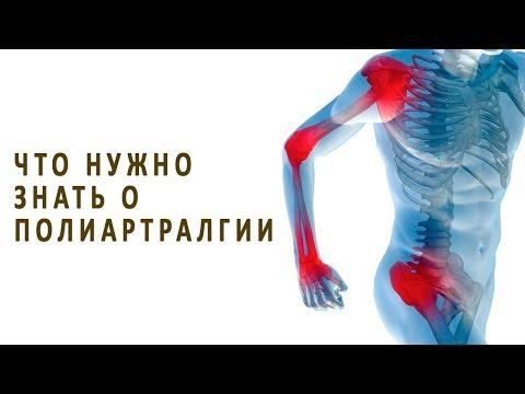 Что нужно знать о полиартралгии