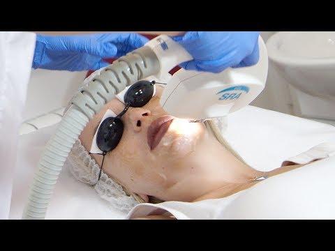 Удаление пигментации и веснушек при помощи лазера. Дорогая салонная процедура от пигментации