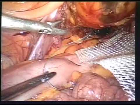 Laparoskopowe techniki szycia chirurgicznego