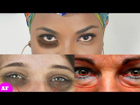 Comme se délivrer des oedèmes sur les yeux et sous les yeux