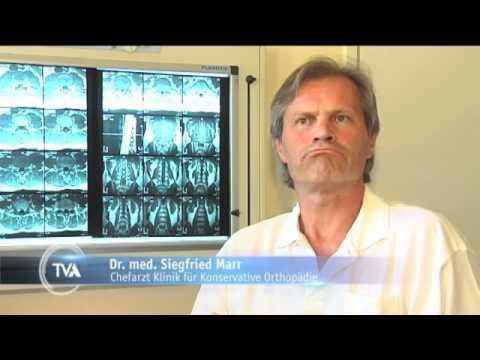 Röntgenstrahlen von Hüftdysplasie