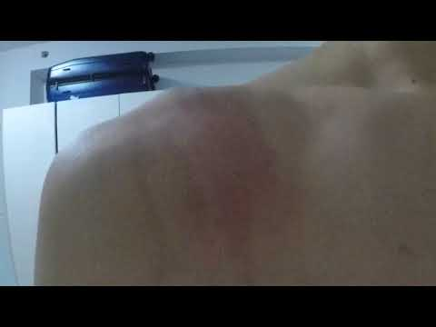 Sonnik bata na may freckles