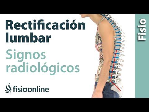 Dolor en la parte frontal del cuello