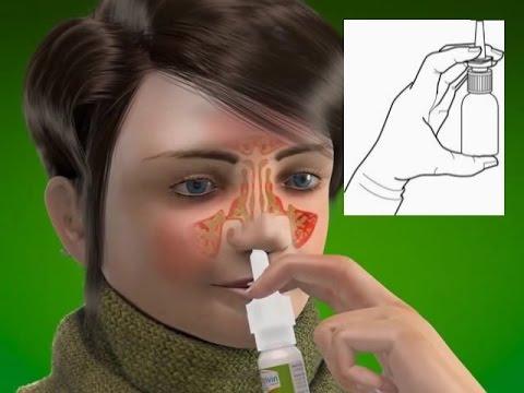 แพทย์รัสโนยาสำหรับเส้นเลือดขอด