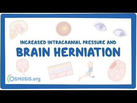 Hipertensión bajo qué enfermedades