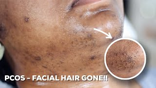 HOW TO WAX YOUR CHIN HAIR AT HOME   DIY Sugar Wax Hair Removal Hack