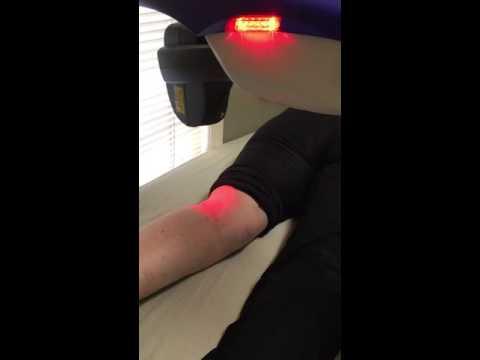 MLS Laser Simple, Effective Pain Relief!