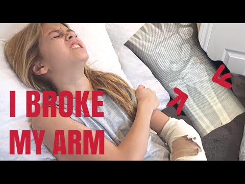 Coco Quinn BROKE her arm!! ( NOT Clickbait!)