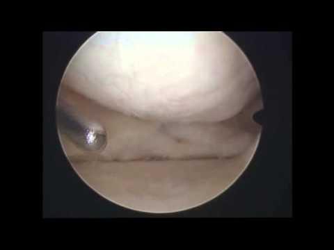 Suchen Osteochondrose der Halswirbelsäule