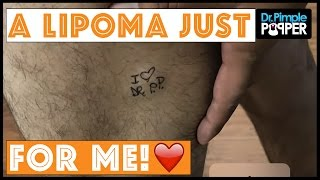 A Lipoma Dedicated to ME! ❤️