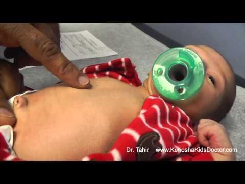 Breast implants 470 ml