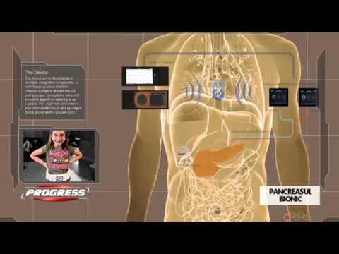 Autoimune de tip boala diabet 1