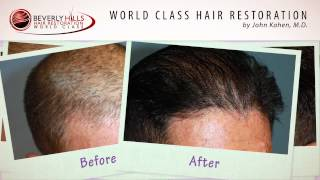 hair-transplant-before-and-after-videos