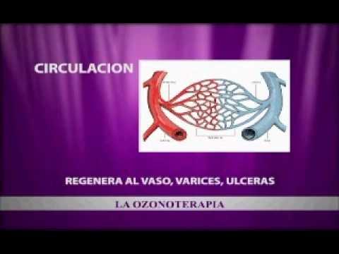 Oftalmología historial médico de la diabetes