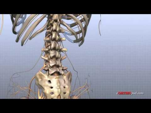 Ce unguent tratează osteochondroza
